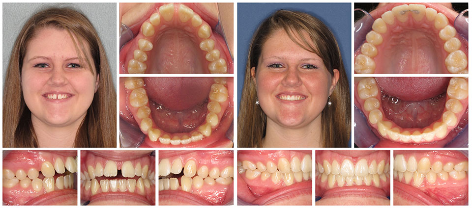 Invisalign Teen Before After