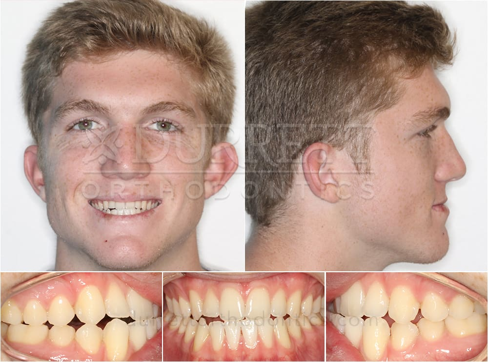 Surgical Orthodontist North Tampa