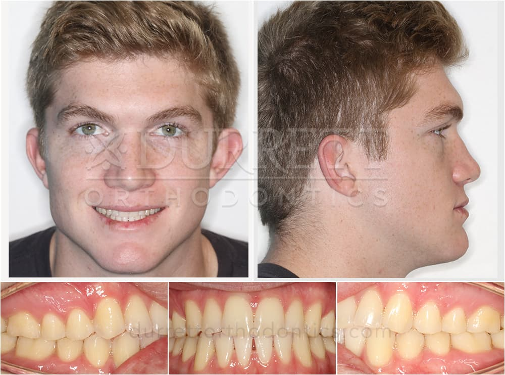 Combined Orthodontic and Surgical Correction of an Underbite (actual patient treated by Dr. Sharon Durrett)